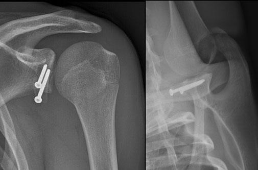 luxacion del hombro cirugia deportiva traumatologia Toulouse Dr Julien Rémi Croix du Sud