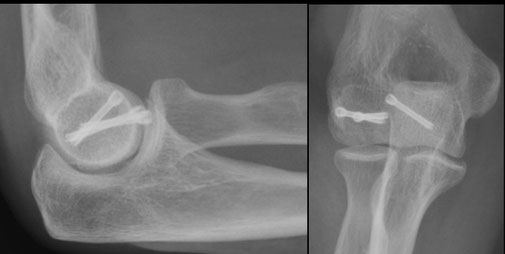 elbow fracture Dr Rémi chirurgie orthopédique Toulouse Capio Croix du Sud