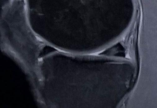 ménisque IRM fracture dégénératif, chirurgie orthopédique Dr Rémi Toulouse