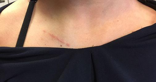 luxation sterno costo claviculaire chirurgie orthopédique du sport Dr Rémi Toulouse la croix du sud
