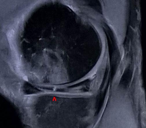 fracture méniscale, lésion, chirurgie orthopédique Dr Rémi Toulouse