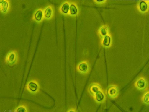 Espermatozoides trucha arcoiris