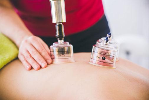 Schröpfen in Kombination mit der medizinischen Massage in der Naturheilpraxis Moni Näf in Muri, Freiamt