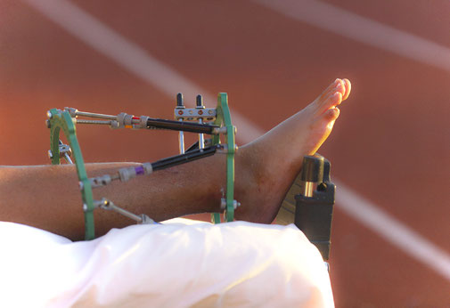 Das mentale Training unterstützt dem Athleten beim Wiedereinstieg nach schweren Verletzungen.