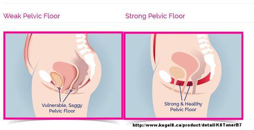 Pelvic Floor Umhlanga Physio For Women