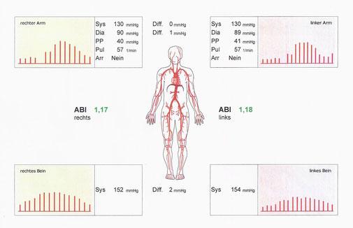 ABI Messung - Boso Messung des Knöchel-Arm Index
