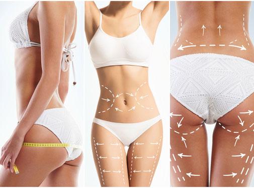 Fettreduktion, Umfangreduzierung, Cellulite, Anti-Aging, Liften bei Shape System Aarau