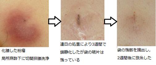 化膿した粉瘤