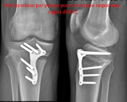 OTV ostéotomie ostéoclasie arthrose genou gonarthrose ouverture