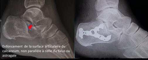 fracture calcaneum, plaque reduction, chirurgie du sport chirurgie orthopédique Dr Rémi Toulouse
