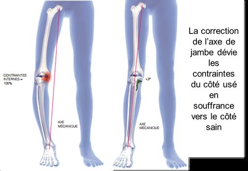 OTV ostéotomie tibiale de valgisation correction genu varum chirurgie Dr Rémi Toulouse