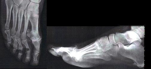 hallux rigidus, arthrose du gros orteil et non hallux valgus