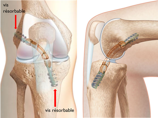 ligamentoplastie DT4 TLS ligament croisé antérieur résultat aspect final, chirurgie orthopédique dr Rémi Toulouse
