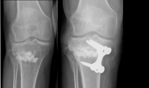 ostéotomie tibiale de varisation cal vicieux arthrose genou chirurgie orthopédie Dr Rémi Toulouse