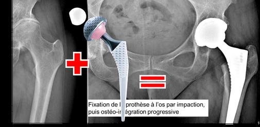 protesis de cadera, artrosis, Dr Rémi Toulouse cirugia ortopedia La Croix du Sud