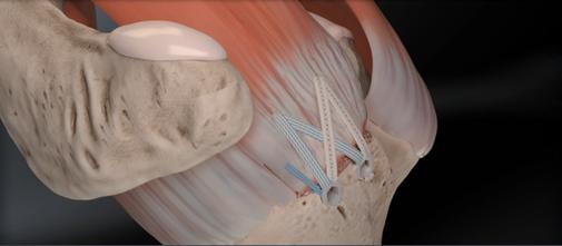 suture de coiffe sus épineux, acromioplastie  chirurgie orthopédique Dr Rémi Toulouse