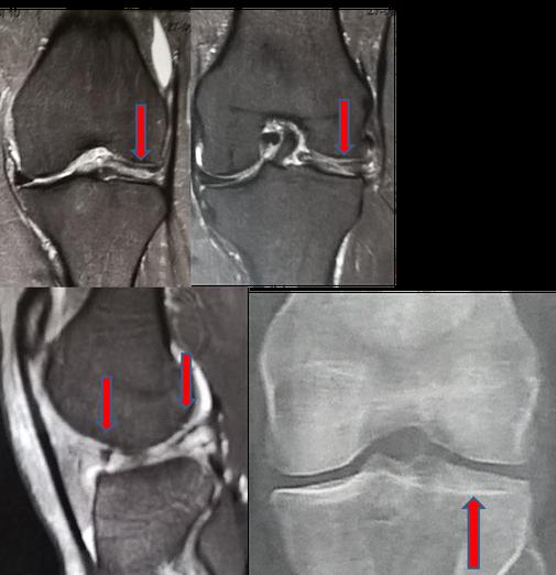 Ménisque externe discoïde, dysplasie, malformation, chirurgie orthopédique Dr Rémi Toulouse