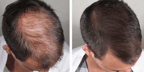 trasplante de pelo, recuperar el cabello, alopecia, Racderma, dermatologo para cabello