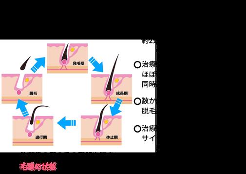 図解・ヘアサイクルを知って治療後の髪の悩みを解決しよう