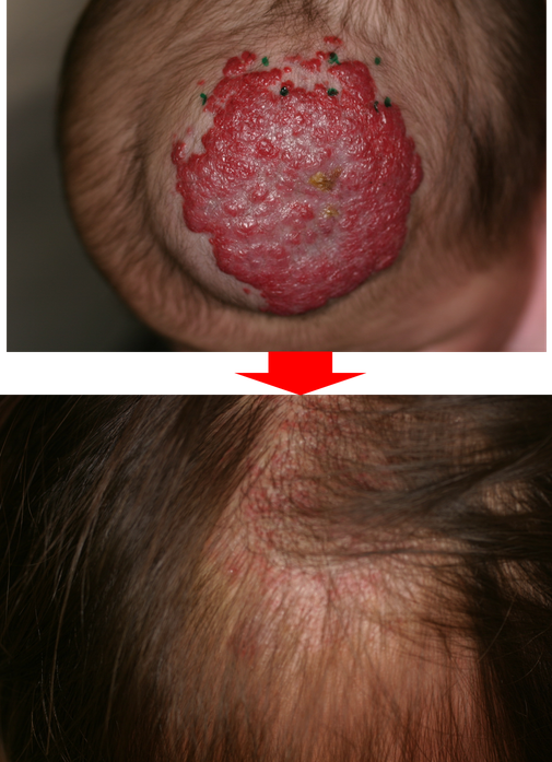頭部苺状血管腫、隆起型