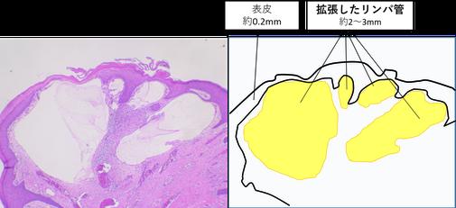 リンパ小疱 リンパ漏 顕微鏡写真