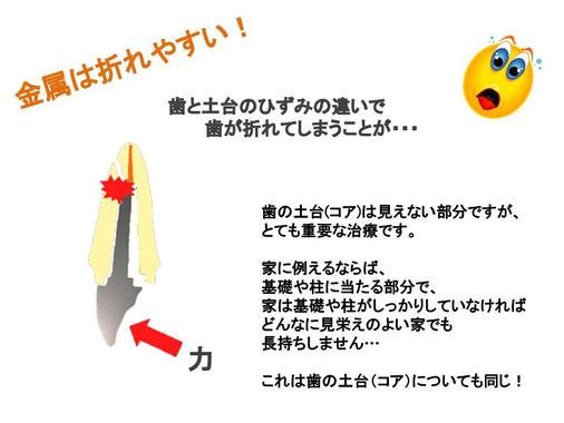 島 審美歯科 歯医者 専門 ファイバーコア