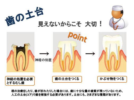 徳島 審美歯科 歯医者 専門 ファイバーコア