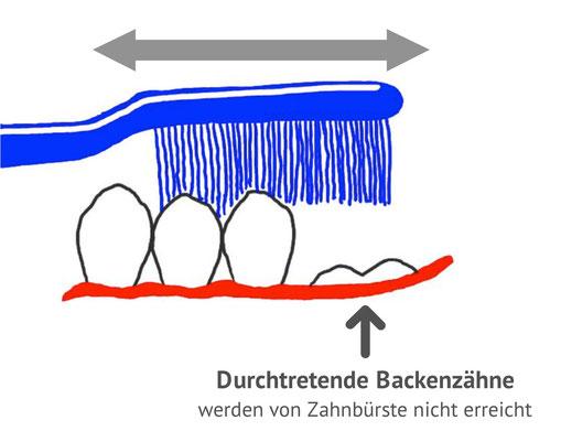 Beim normalen Zähneputzen werden die durchtretenden Zähne nicht erreicht (© Doc S)