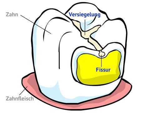 Fissuren-Versiegelung: Kariesschutz vom Zahnarzt für die Backenzähne (© wigerio)