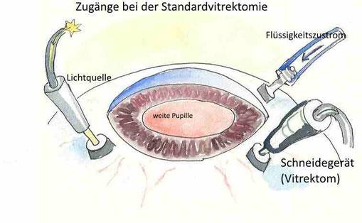 Schematische Zeichung des intraoperativen Situs während einer Standardvitrektomie.