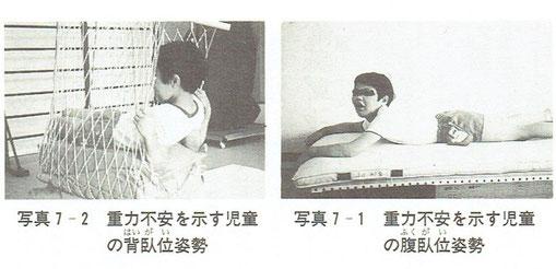 重力不安を示す児童の背臥位姿勢と腹臥位姿勢