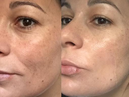 eliminar manchas en la piel con peeling quimico