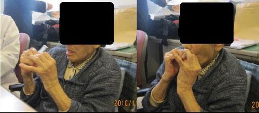 特別老人ホームでの服用試験