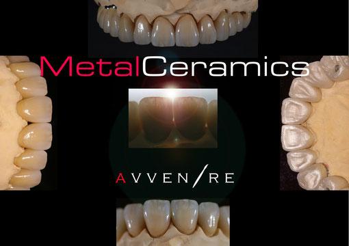 MetalCeramics