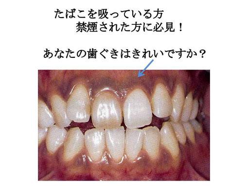 ガムブリーチ ガムホワイトニング 徳島 歯科 歯医者 鳴門市