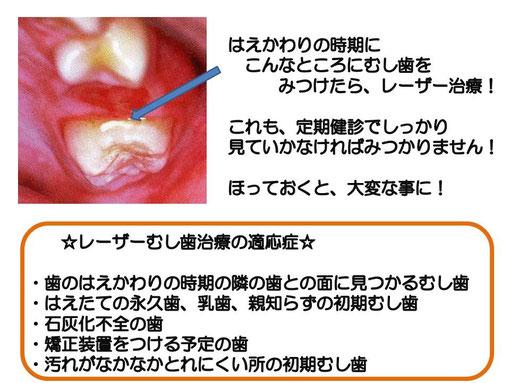 徳島 レーザー治療 むし歯 歯医者 鳴門市 歯科