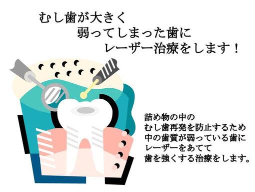 徳島 歯科 レーザー治療 鳴門市