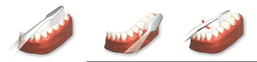 persönliche Tips erfahren Sie in der Zahnarztpraxis Gregorek, in Augsburg-Lechhausen