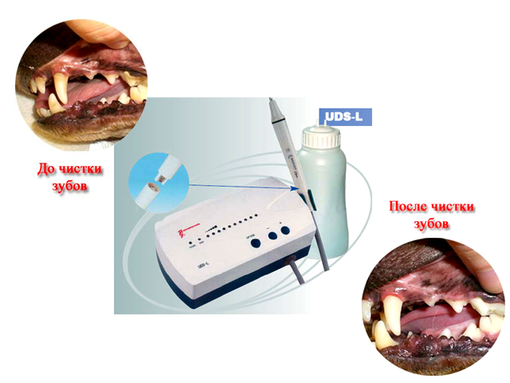 аппарат для чистки зубов - ультразвуковой скалер