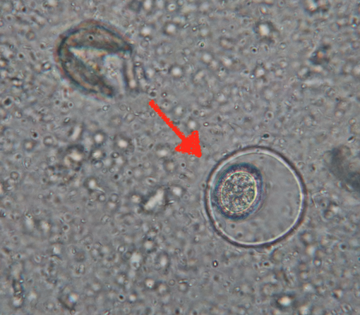 スギ花粉 顕微鏡下