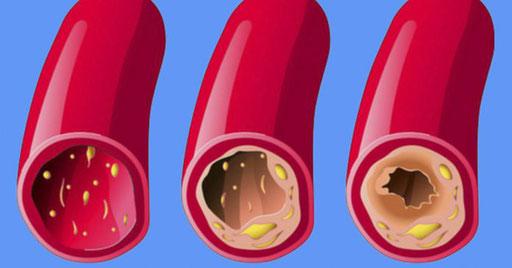 8 alimentos que te ayudan a limpiar tus arterias