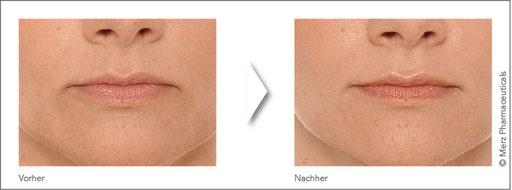 Lippenkorrektur - Abb. 11