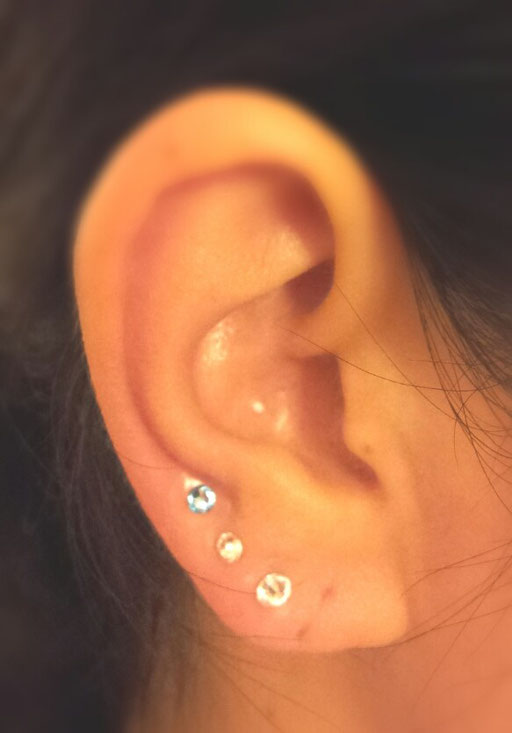 耳つぼリフトアップベーシック
