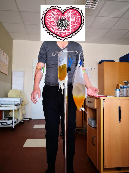 血液净化 德国INUS环境代谢毒素双模靶向干预系统 案例