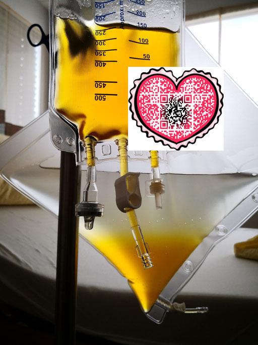 血液净化 德国INUS环境代谢毒素双模靶向干预系统 案例毒素包