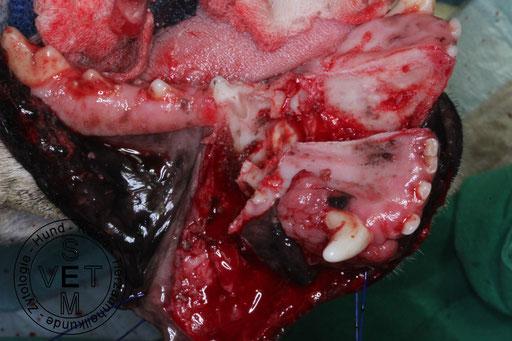 Plattenepithelkarzinom - Resektion