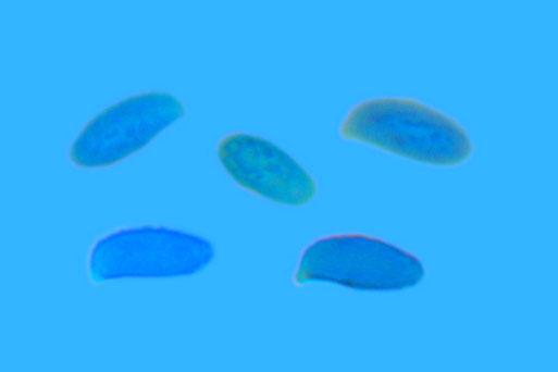 Bild 2 – Sporen der Gelblichen Koralle mit wulstig-Warzigem Ornament, präpariert in Baumwollblau (B. Miggel)
