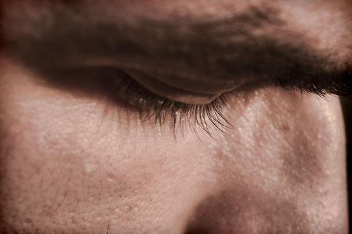 ein Symptom von Trockenen Augen ist zum Beispiel Augenbrennen