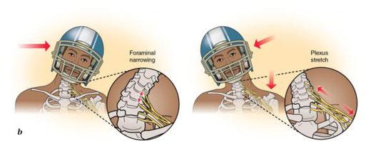 brachial plexus lesion mechanism