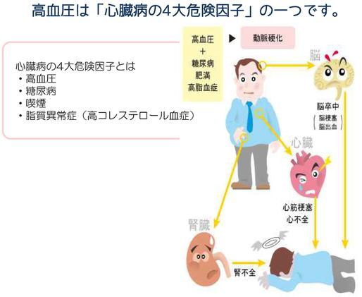 高血圧は心臓病の4大危険因子「高血圧」「糖尿病」「喫煙」「脂質異常症(高コレステロール血症)」の一つです。